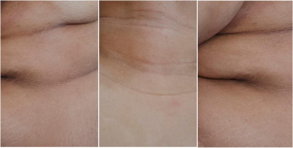 Jillian Browning photo triptych of human flesh folds